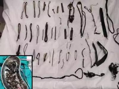 डाक्टरले निकाले महिलाको पेटबाट डेढ किलोको सामान, भेटियो फलामे किला, ब्रासलेट, सिक्री, मंगलसूत्र
