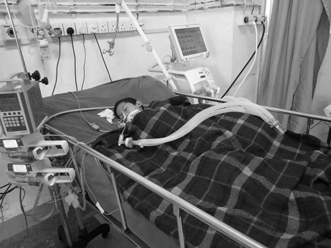 मकवानपुरमा च्याउ खाएर बिरामी परेका ७ बर्षीय बालकको समेत ज्यान गयाे,मृतककाे सख्या तीन पुग्याे