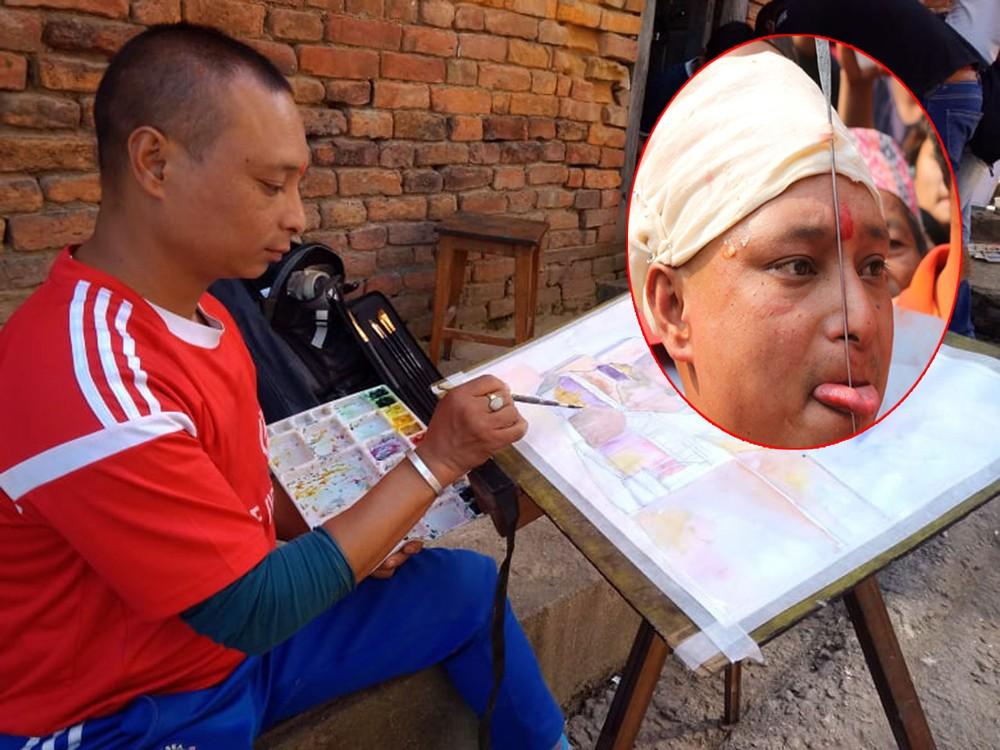 आठ पटक जिब्रो छेड्ने जुजुभाईको अनुभव : पीडा होस् तर रगत नबगोस्