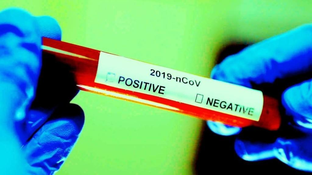 धनुषाका २९ जनासहित थप ७६ जनामा कोरोना संक्रमण पुष्टि