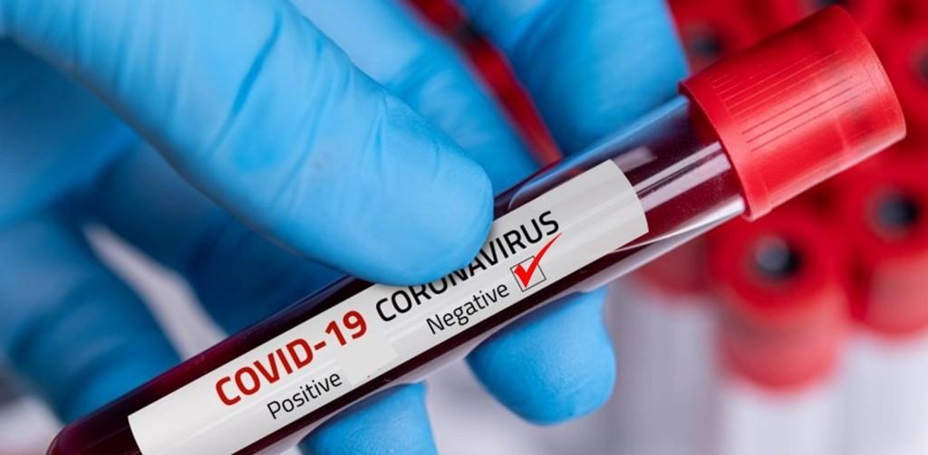 कपिलवस्तुमा आज थपिए ४० जना कोरोना संक्रमित
